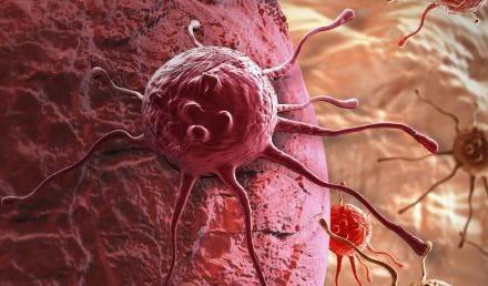 Онкологические образования при гипертонии