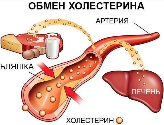Атеросклероз при гипертонии