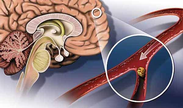 Возможность сбоев в работе мозга, которые нельзя восстановить при гипертонии