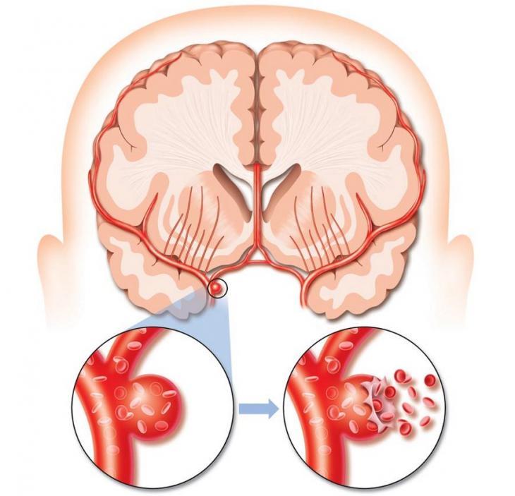 Сбои кровообращения в мозгу