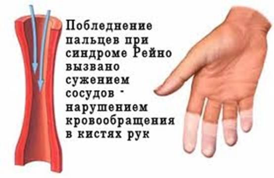 Изображение - Таблетки снижающие давление под язык 235_152500517010