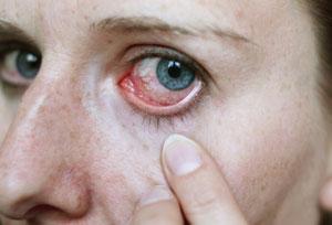 40 15155021573 - Hlavní příznaky hypertenze u mužů