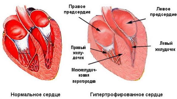 Изображение - Гипертония и гипертензия в чем разница 48_15156975663