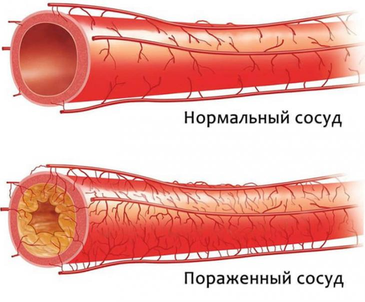 Причины повышения нижнего давления и характерные симптомы